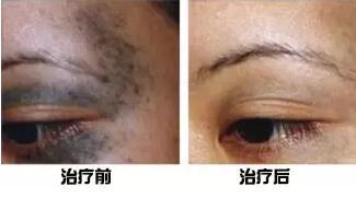 胎记长在眼皮治疗前后效果图