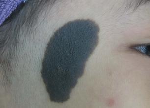 上海治疗黑色素痣图片