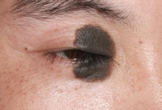 上海治疗黑毛痣需要多少钱