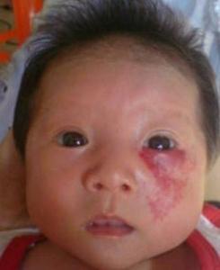 上海治疗鲜红斑痣