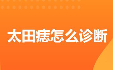 上海去胎记医院:太田痣该怎么诊断