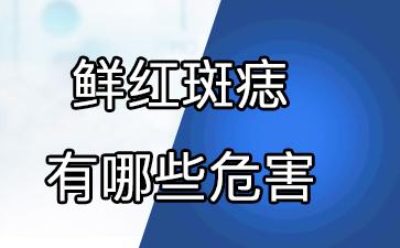 上海胎记看哪个医院好:鲜红斑痣有哪些危害