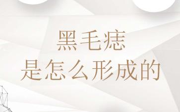 上海哪家医院去胎记最好:黑毛痣是怎么形成的