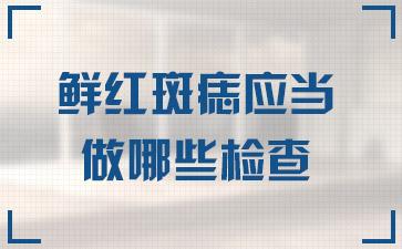 上海哪家去胎记医院好:鲜红斑痣应当做哪些检查