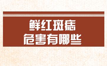 上海胎记治疗好医院:鲜红斑痣的危害有哪些