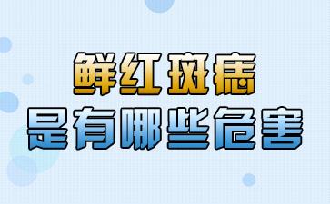 上海看胎记的医院:鲜红斑痣是有哪些危害