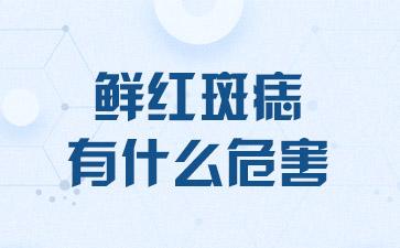 上海做胎记哪里医院好:鲜红斑痣有什么危害