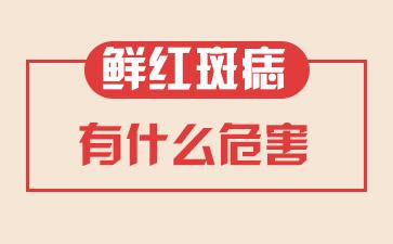 上海哪个医院可以去胎记:鲜红斑痣有什么危害