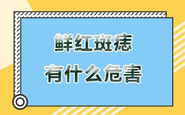 上海做胎记医院哪家好:鲜红斑痣有什么危害