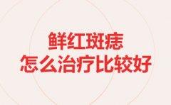 上海治疗胎记哪家好:鲜红斑痣怎么治疗比较好?