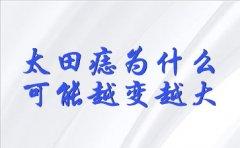 上海胎记最出名哪家:太田痣为什么可能越变越大?